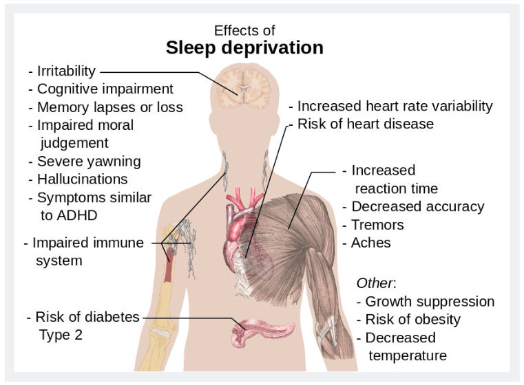 The effects of sleep deprivation diagram
